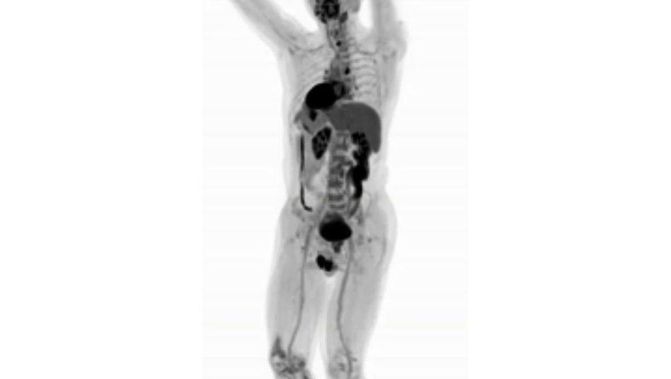 Glukosemetabolismus im menschlichen Körper