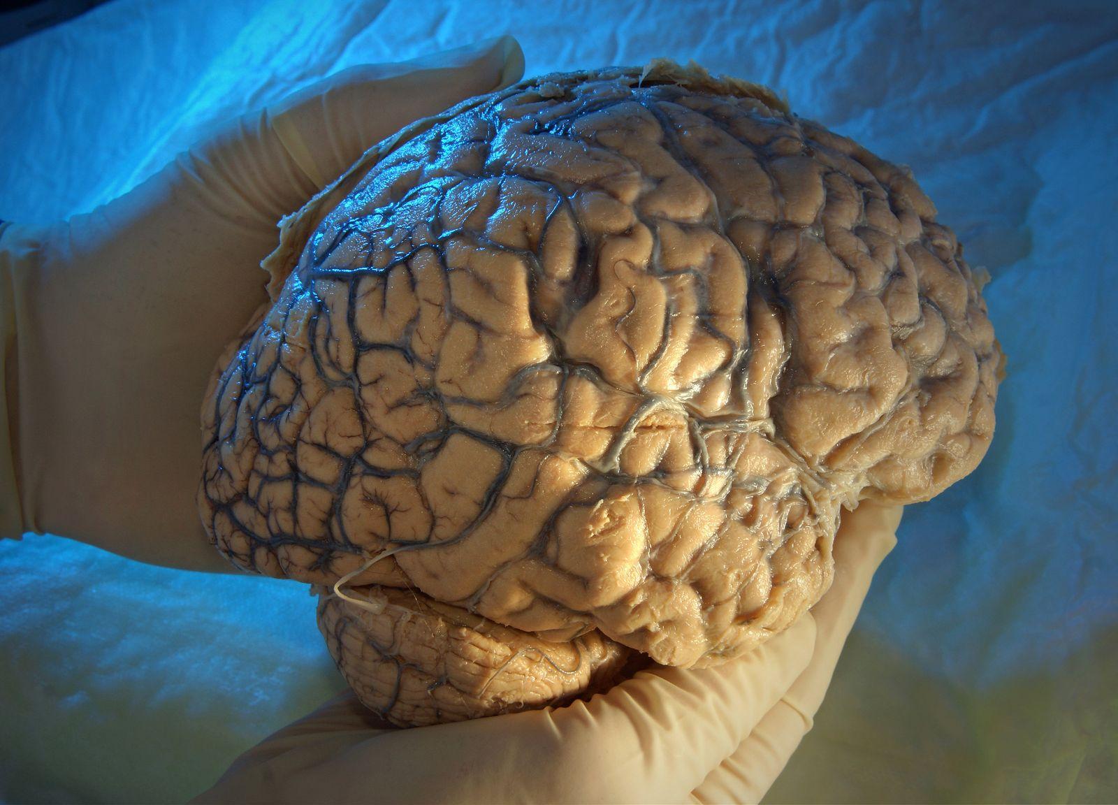 Hirnsubstanz / Alzheimer-Risiko