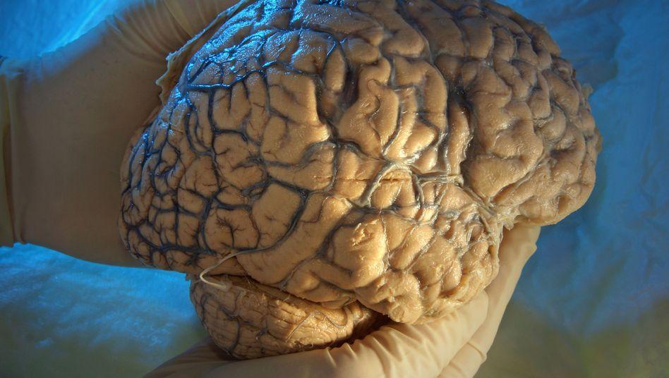 Menschliches Gehirn: Alzheimer breitet sich offenbar wie eine Infektionskrankheit aus