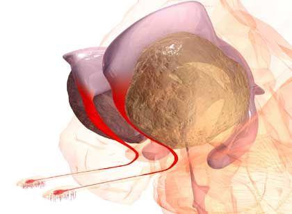Highway der Stammzellen: Über die hier rot dargestellten Röhren gelangen die Vorläuferzellen aus der Nähe der Hirnkammern (lila) zu den spezialisierten Riechzellen (unten links).