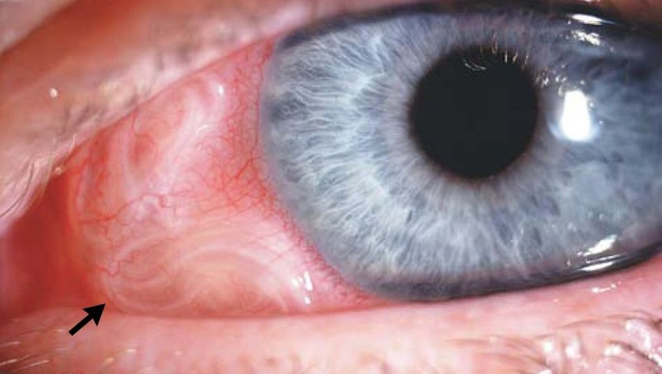 Rotes Auge mit weißen Fäden: Was für ein Fremdkörper könnte das sein?