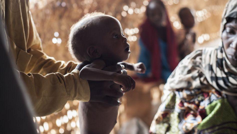 Unterernährtes Kleinkind in Maiduguri, Nordnigeria (Archivbild)