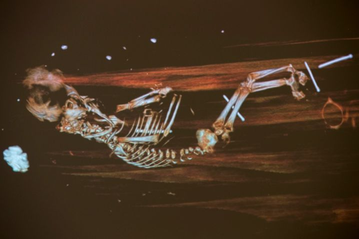 Röntgenbild des Fötus