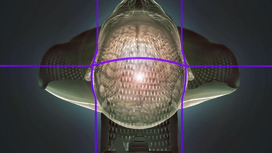 Dreidimensionale Computertomografie-Darstellung eines Gehirntumorpatienten