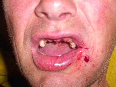 Verletzter Klein: Vier Zähne verloren