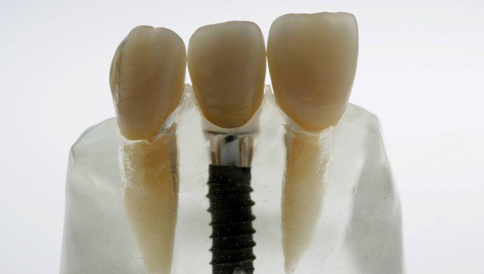 Implantate: Der teure Zahnersatz