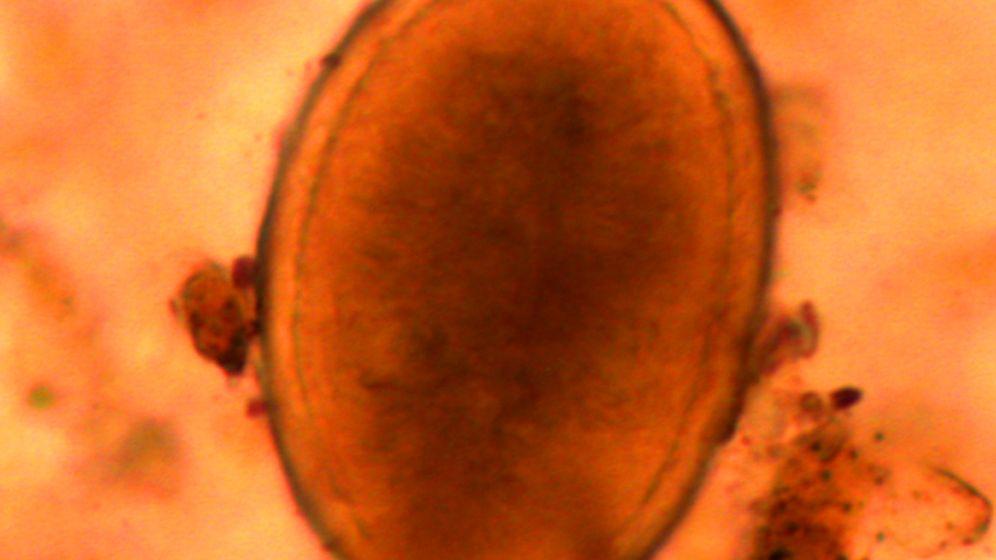 Spulwurm-Fund: Richard III. litt unter Parasiten