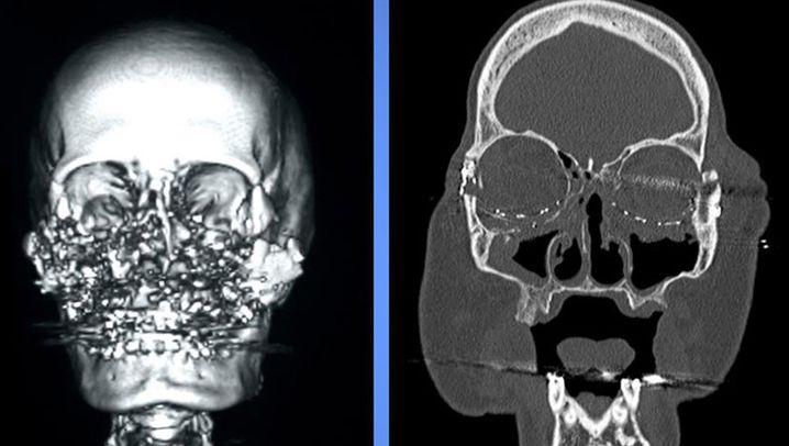 Gesichtstransplantation: Das Schicksal der Connie Culp