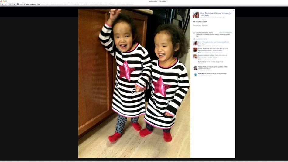 Zwillinge Binh und Phuoc: Die Eltern suchten über Facebook Organspender