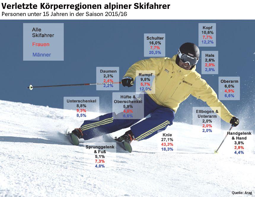 Grafik - Skisport - Verletzte Körperregionen alpiner Skifahrer 2015/16