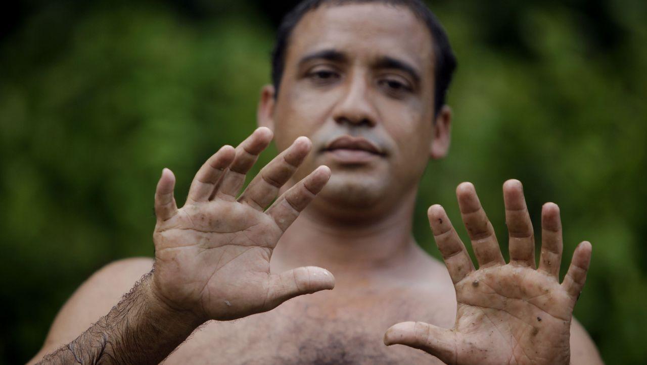 Sechs Finger