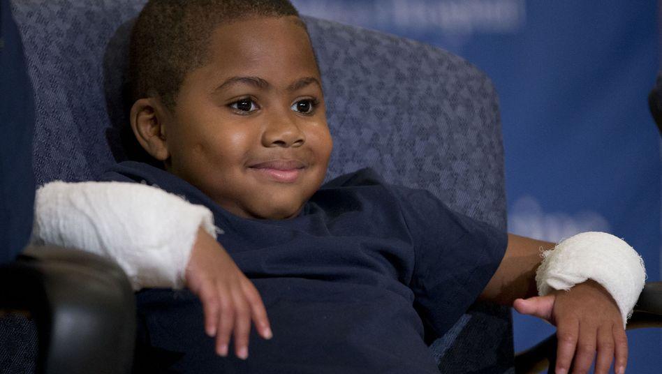 Transplantation: Achtjähriger bekommt neue Hände