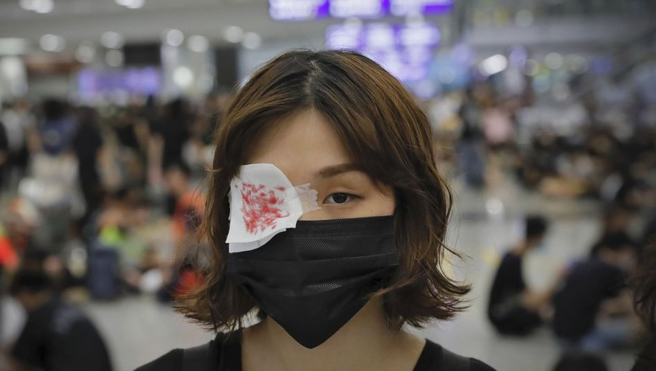 Eine Demonstrantin mit Augenklappe: Bilder einer verletzten Frau hatten Entsetzen ausgelöst