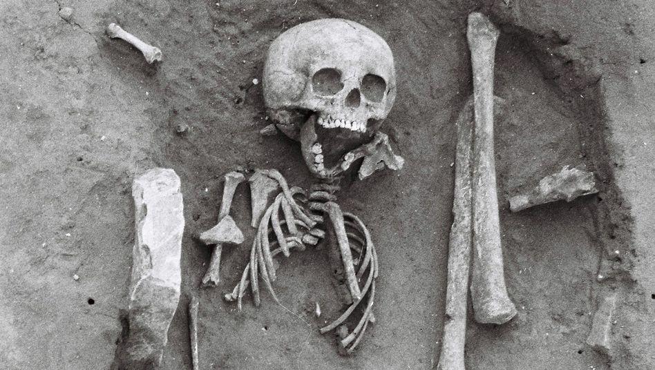 Skelettfund in Frankreich: Kleines Kind mit großem Schädel