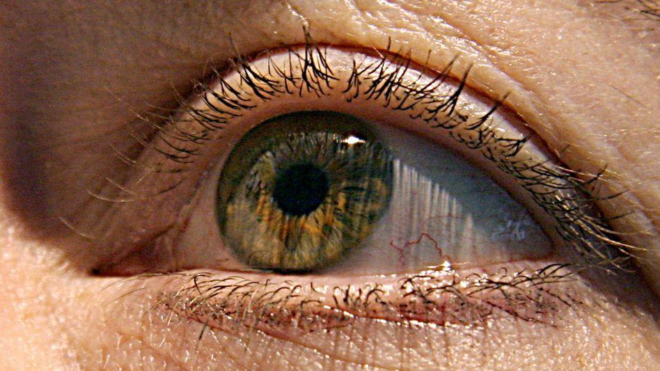 Auge: In den Wimpern können Milben leben, ob sie Entzündungen auslösen, ist jedoch nicht geklärt