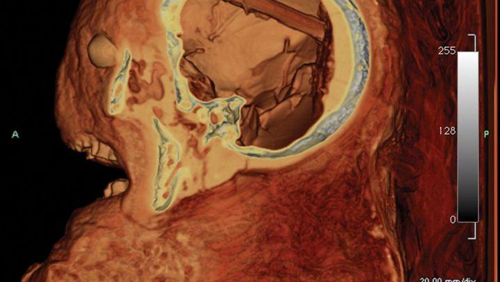 Bizarrer Fund: Werkzeug im Kopf einer Mumie vergessen