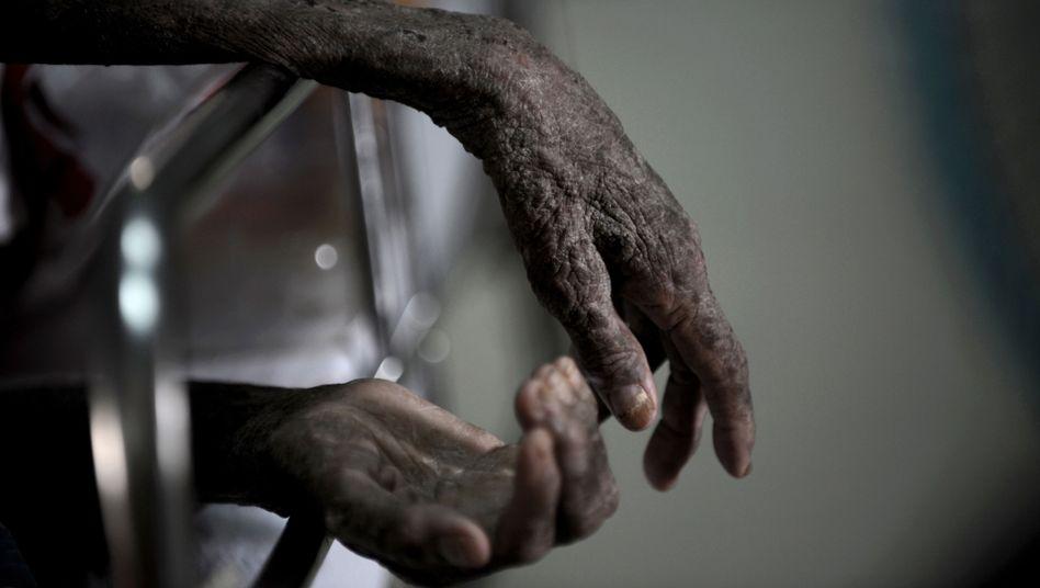 Aidspatient (in Thailand): Hat die Pockenimpfung das HI-Virus lange in Schach gehalten?