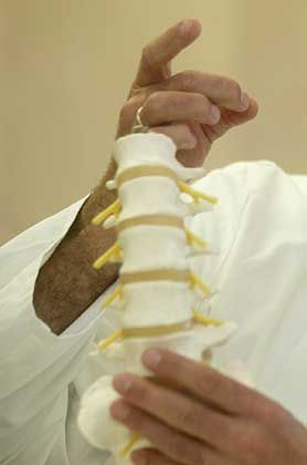 Modell einer Wirbelsäule: Die Bandscheiben zwischen den Wirbelkörpern können für Schmerzen sorgen