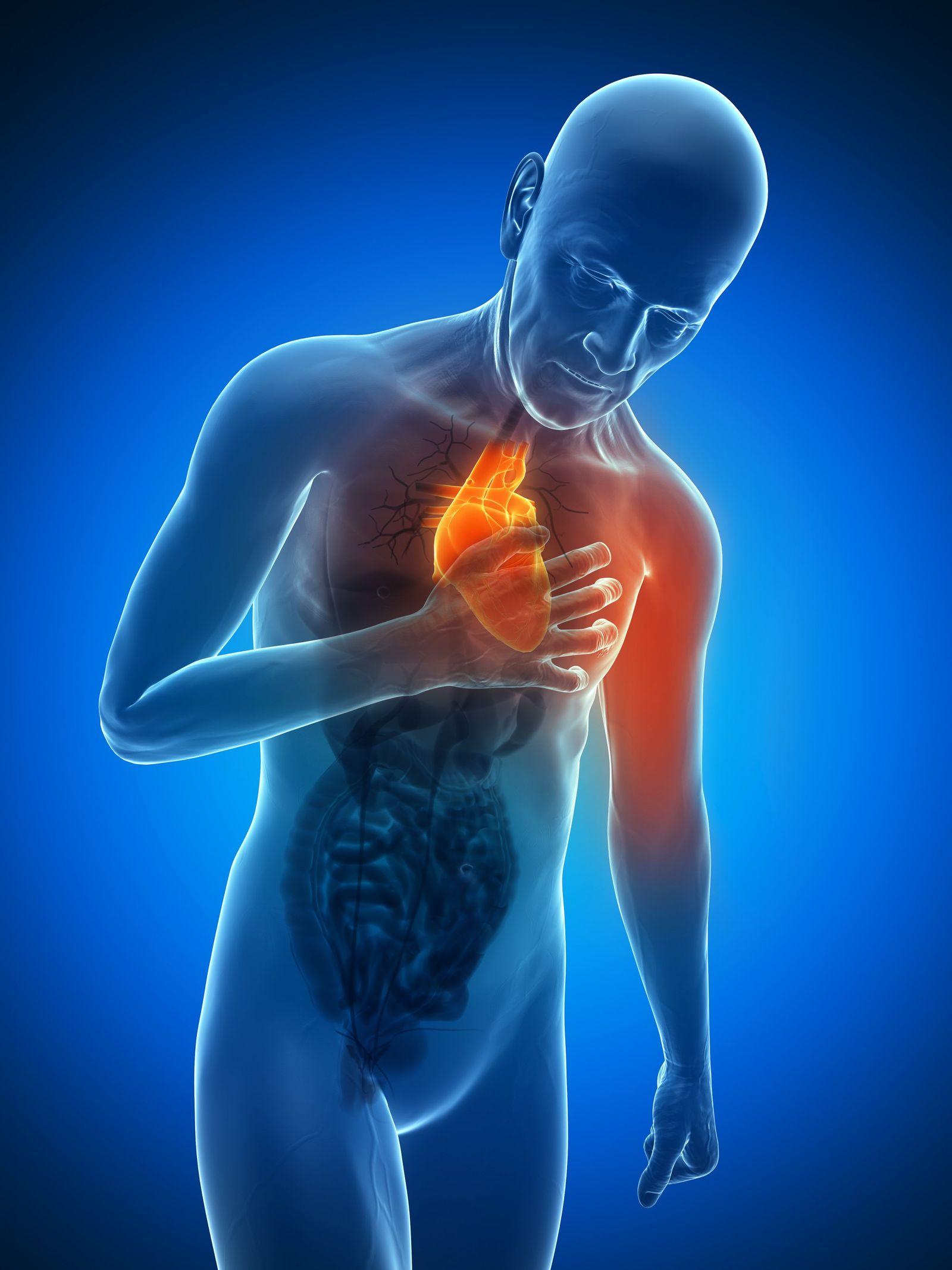 NICHT MEHR VERWENDEN! - Herzinfarkt / Herz