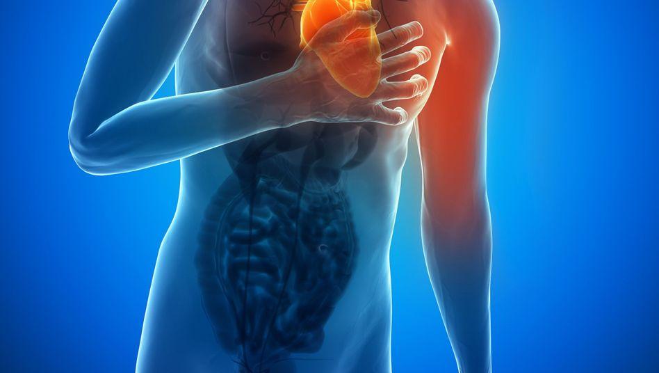 Herzinfarkt: Bei Schmerzen im Brustkorb und einem Engegefühl sofort den Notruf wählen