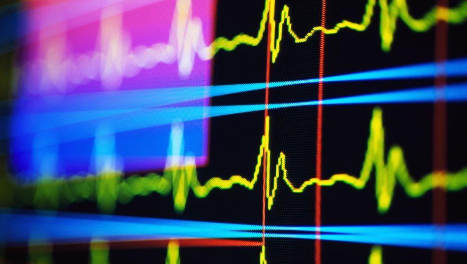 Herzaktionen auf dem Kardiogramm: Wenn der Kardiologe jederzeit das EKG auswerten kann