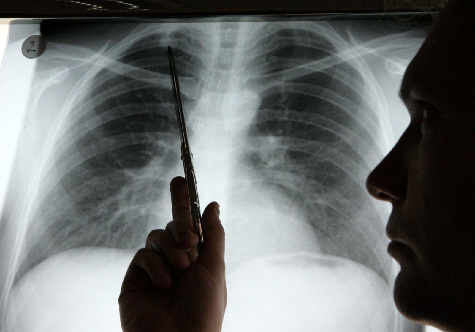 Diognose Lungenkrebs