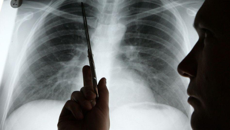 Lungenkrebs Bei Nichtrauchern