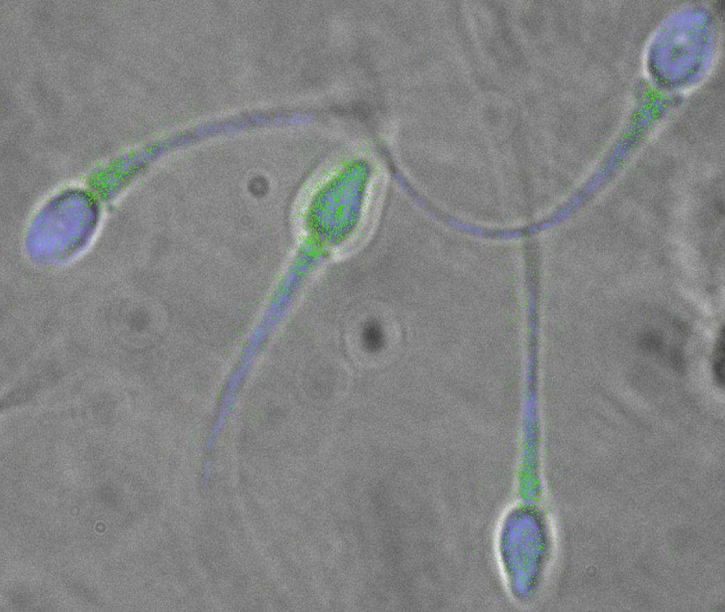 EINMALIGE VERWENDUNG Spermien / Sperma / WISSENSCHAFT