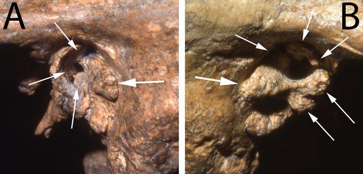 Knochenwucherungen im Gehörgang: Shanidar 1 war taub