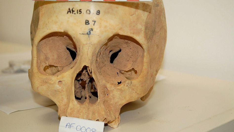 Historischer Schädel: Größe des Sehzentrums weist auf Wohnort hin