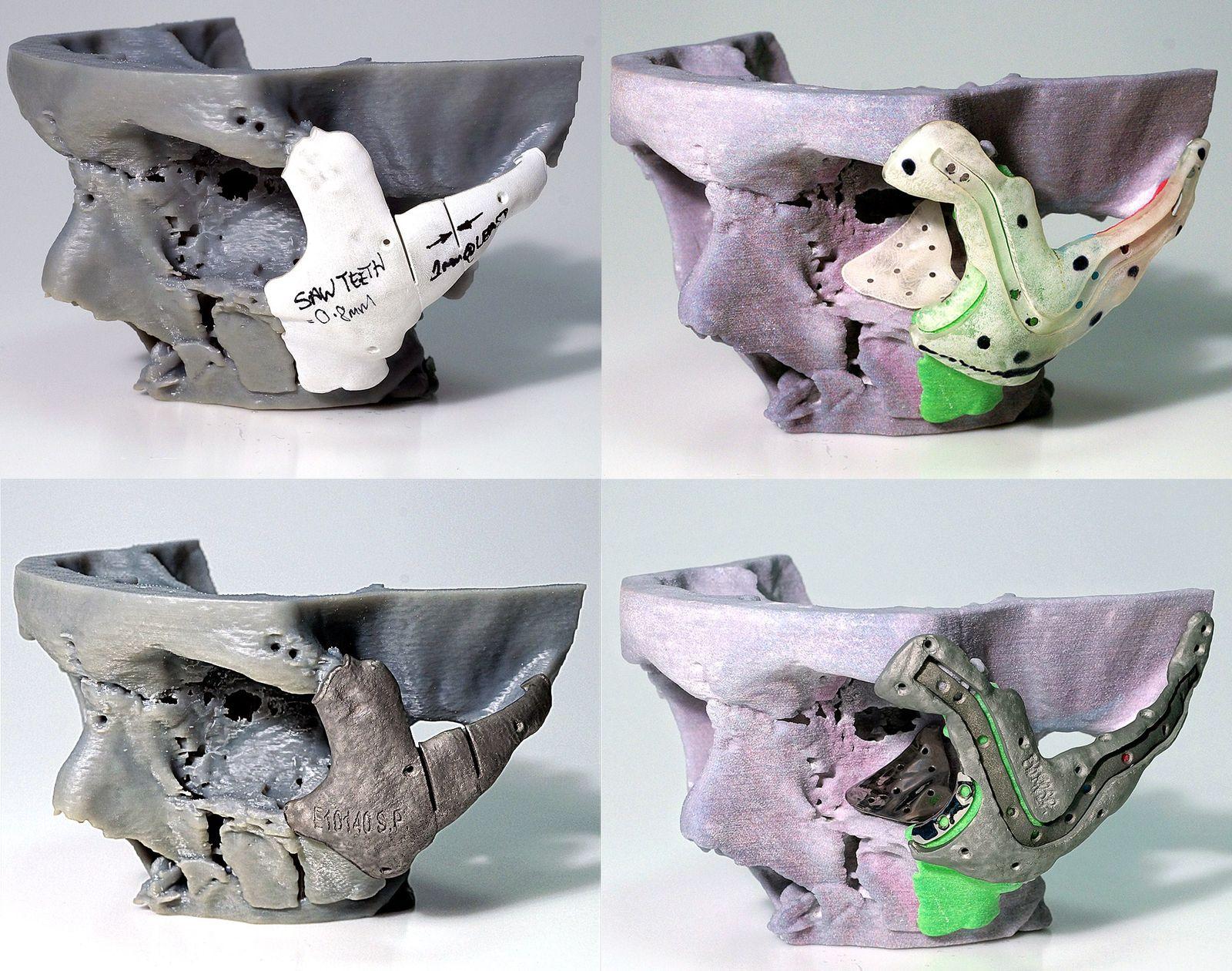 EINMALIGE VERWENDUNG Gesichtsrekonstruktion / 3D Drucker