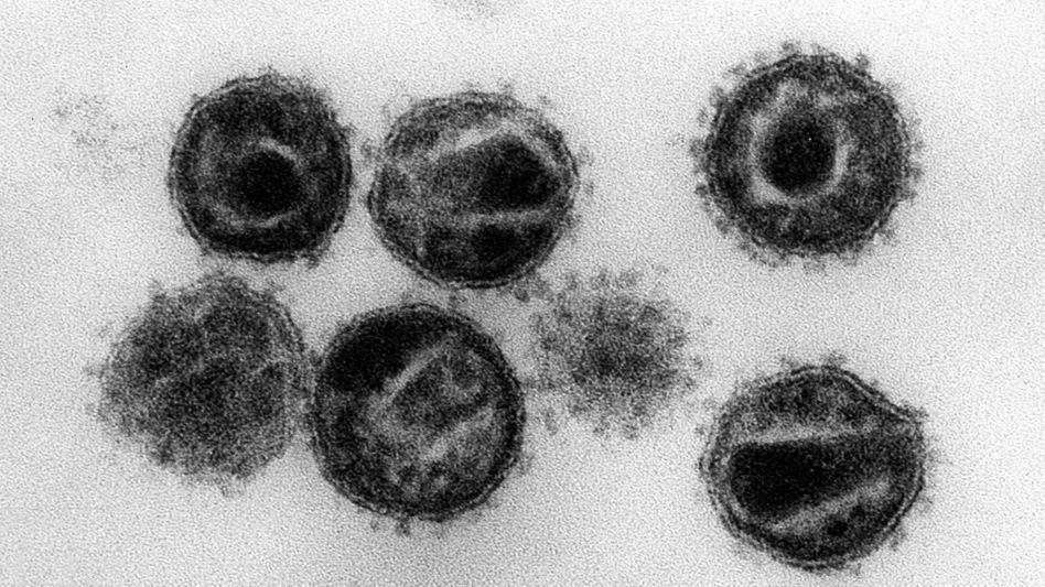 Elektronenmikroskopische Aufnahme von HI-Viren: Mutationsfreudige Erreger