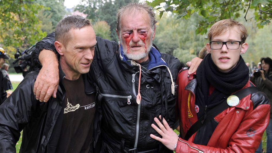 Hilfe für David Wagner am 30. September in Stuttgart: Auf einem Auge bleibt er blind