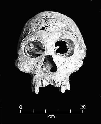 Schädel des Homo Erectus aus dem georgischen Dmanisi