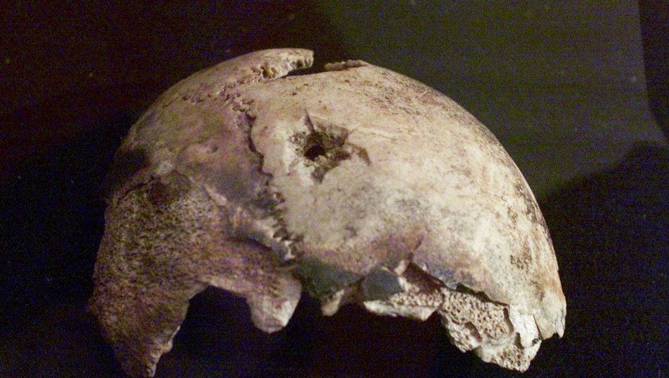 A photo of what Russian officials claim is a fragment of Adolf Hitler's skull. But is it?