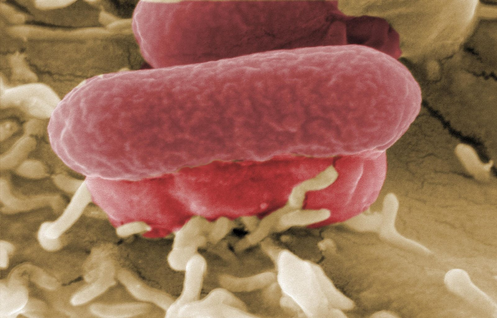 EHEC/ Bakterium/ Mikroskop