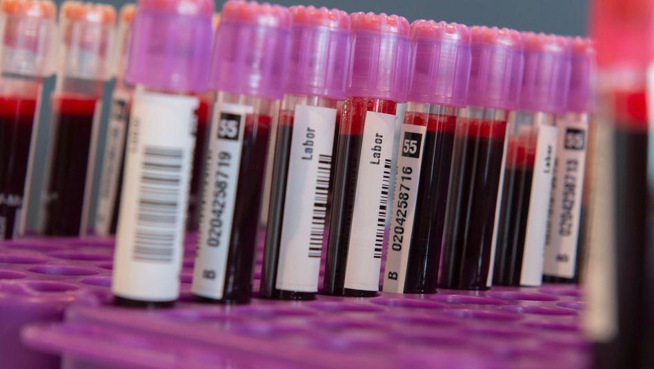 Abwehrzellen im Blut entscheiden darüber, wie gut der Körper das Coronavirus bekämpft