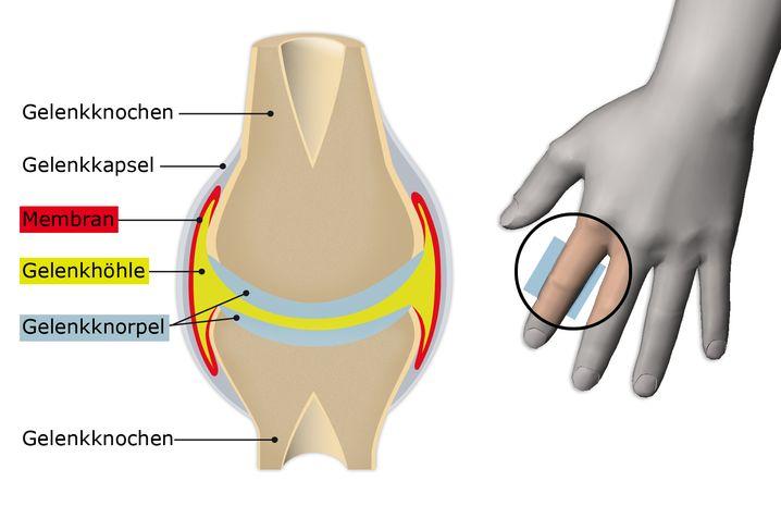 Die Flüssigkeit befindet sich in der Gelenkhöhle (gelb)