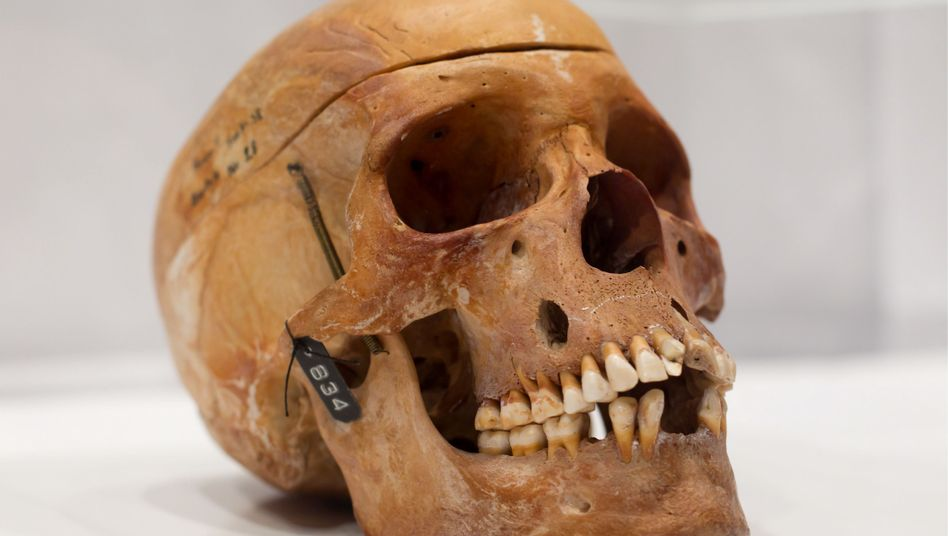 One of the Herero skulls identified at Berlin's Charité Hospital.