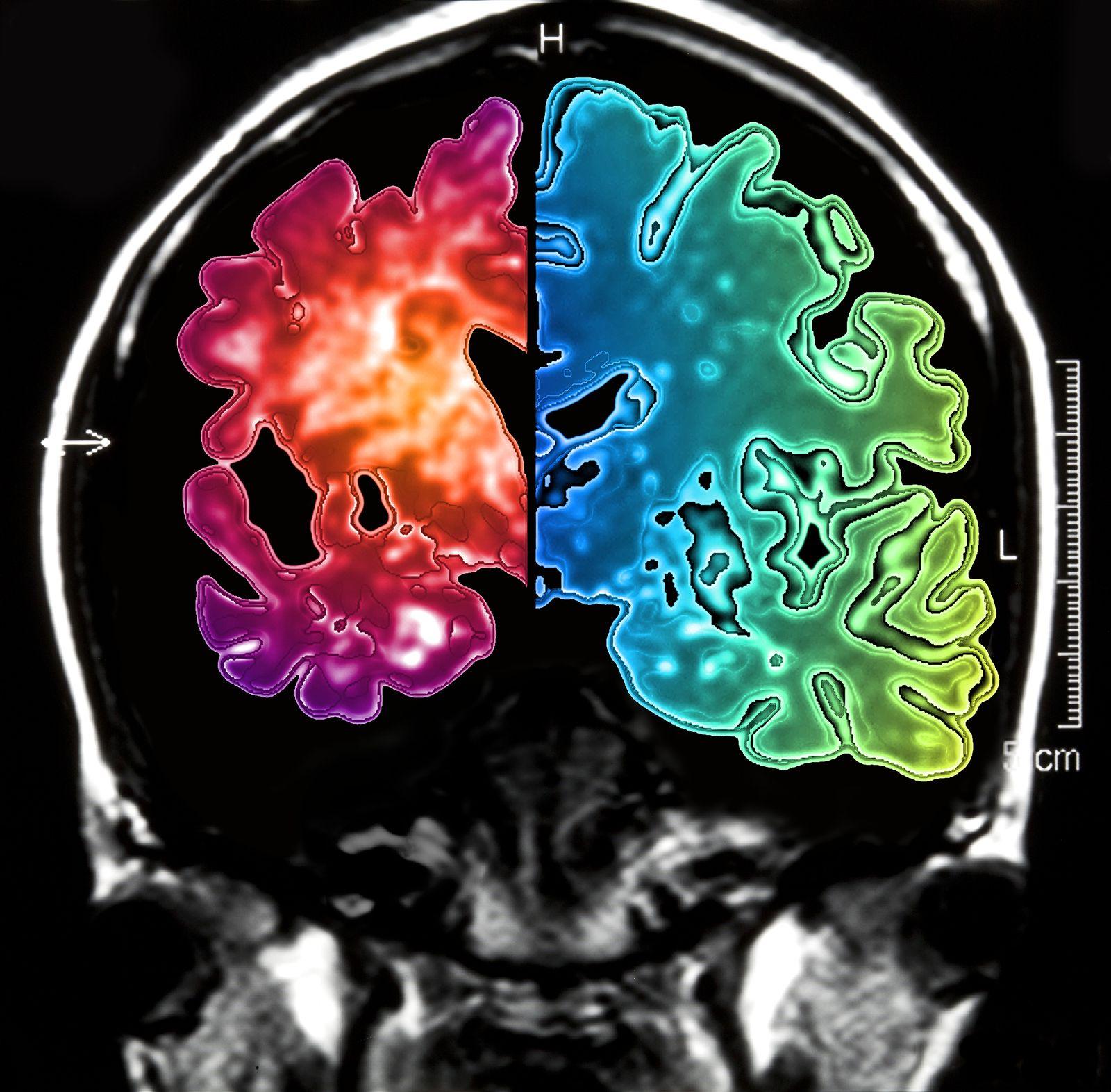 NICHT MEHR VERWENDEN! - Hinrscan / Alzheimer