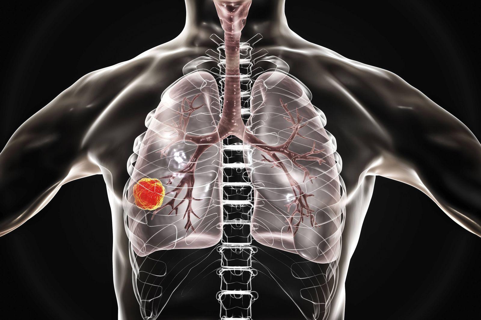 EINMALIGE VERWENDUNG Lungenkrebs