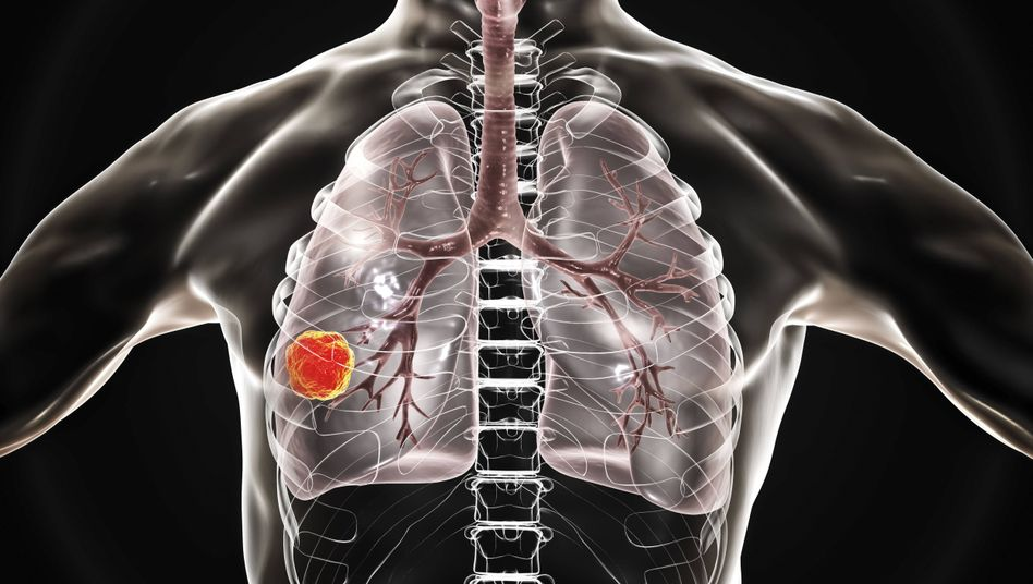 Lungenkrebs (Illustration)