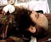 Das Bild zeigt den tschetschenischen Rebellen-Führer Schamil Bassajew bei einer medizinischen Operation im Jahr 2000