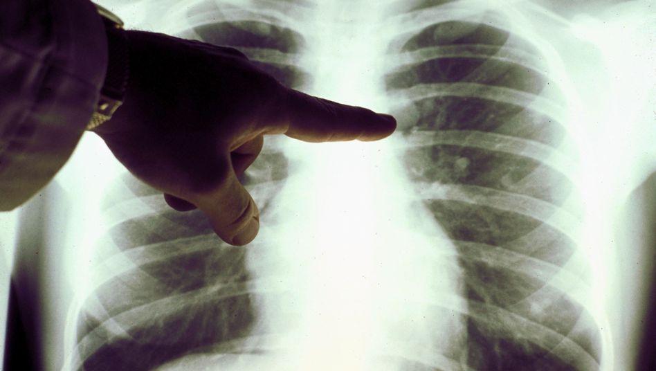 Röntgenbild des Brustraums: Rauchen ist die häufigste Ursache für Lungenkrebs
