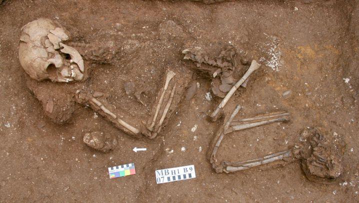 4000 Jahre altes Skelett: Der Mann litt am Klippel-Feil Syndrom