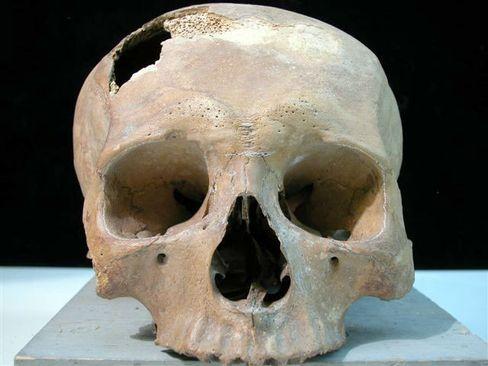 Kinderschädel aus der Cenote: Massive Schläge auf den Hinterkopf
