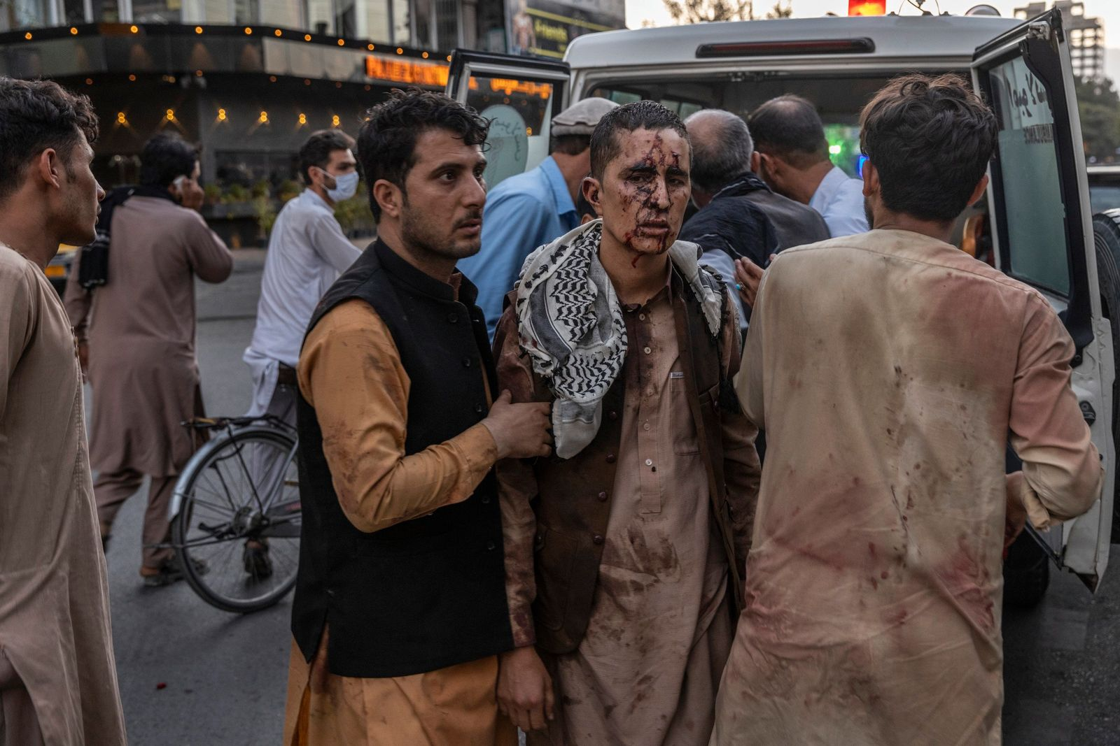A person wounded in a bomb blast outside the international airport in Kabul, Afghanistan on Thursday, Aug. 26, 2021, arrives at a hospital in Kabul. (Victor J. Blue/The New York Times)