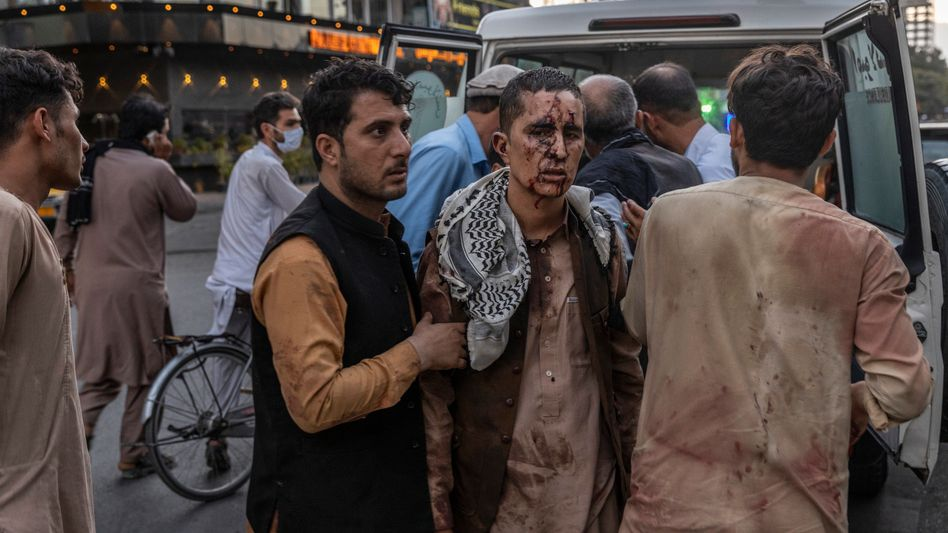 A person wounded in the bomb blast at the international airport in Kabul