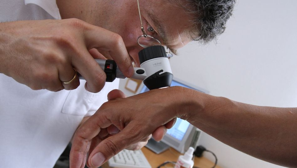 Früherkennung: Hautkrebs ist einer der vermeidbarsten Krebsarten