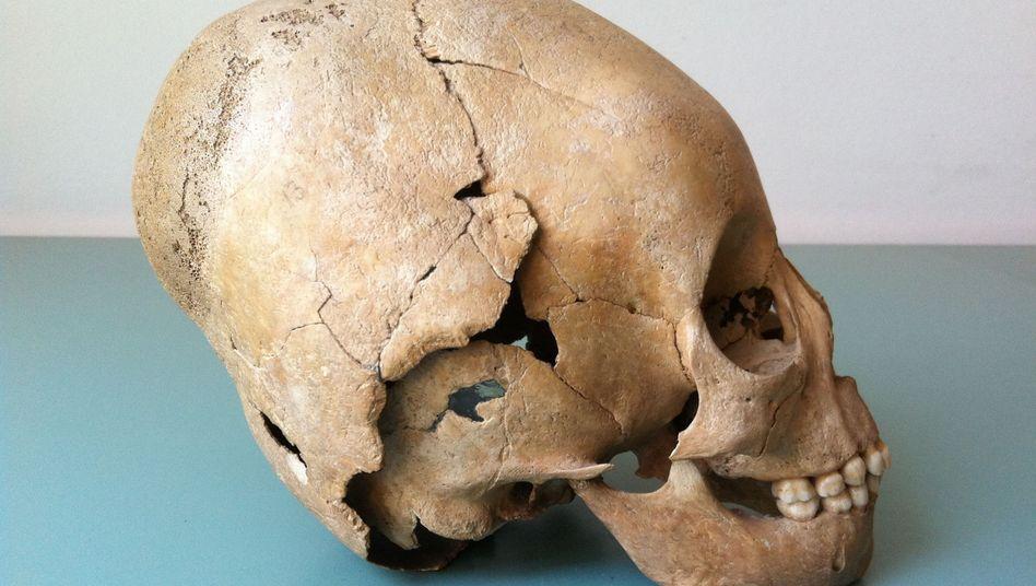 Hunnen-Schädel